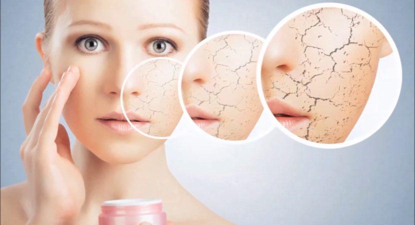 Biểu hiện điển hình của làn da khô