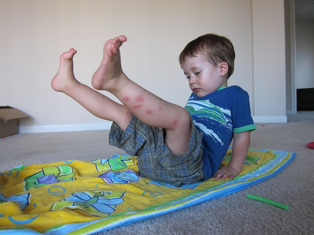 Những cách chống muỗi cho trẻ nhỏ hiệu quả nhất