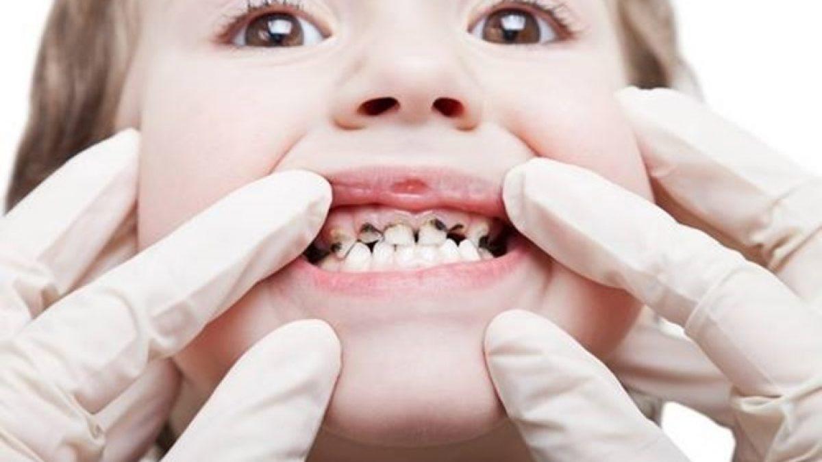 Những nguyên nhân dẫn đến hiện tượng sâu răng ở trẻ